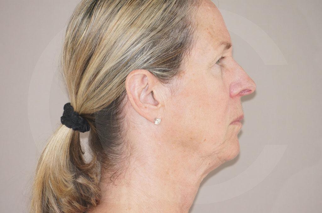 Lipofilling facial Madrid foto Rejuvenecimiento facial antes 05