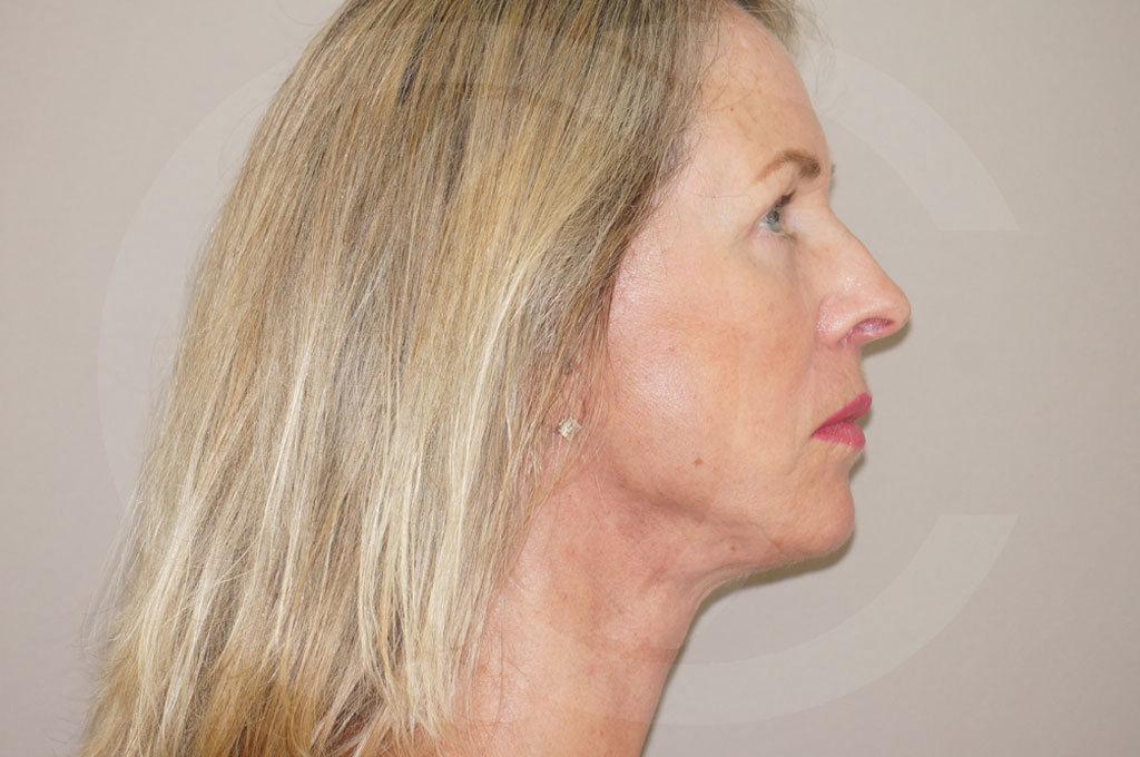 Lipofilling facial Madrid foto Rejuvenecimiento facial después 06