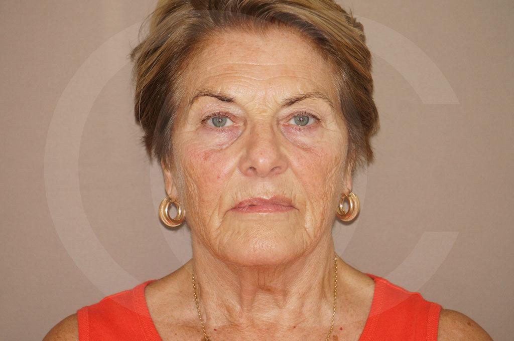 Lipofilling facial Madrid foto PAVE-lifting antes 01