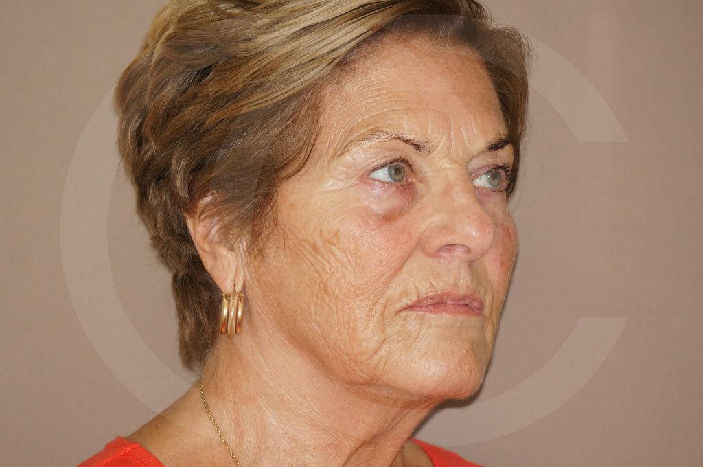 Lipofilling facial Madrid foto PAVE-lifting antes 03