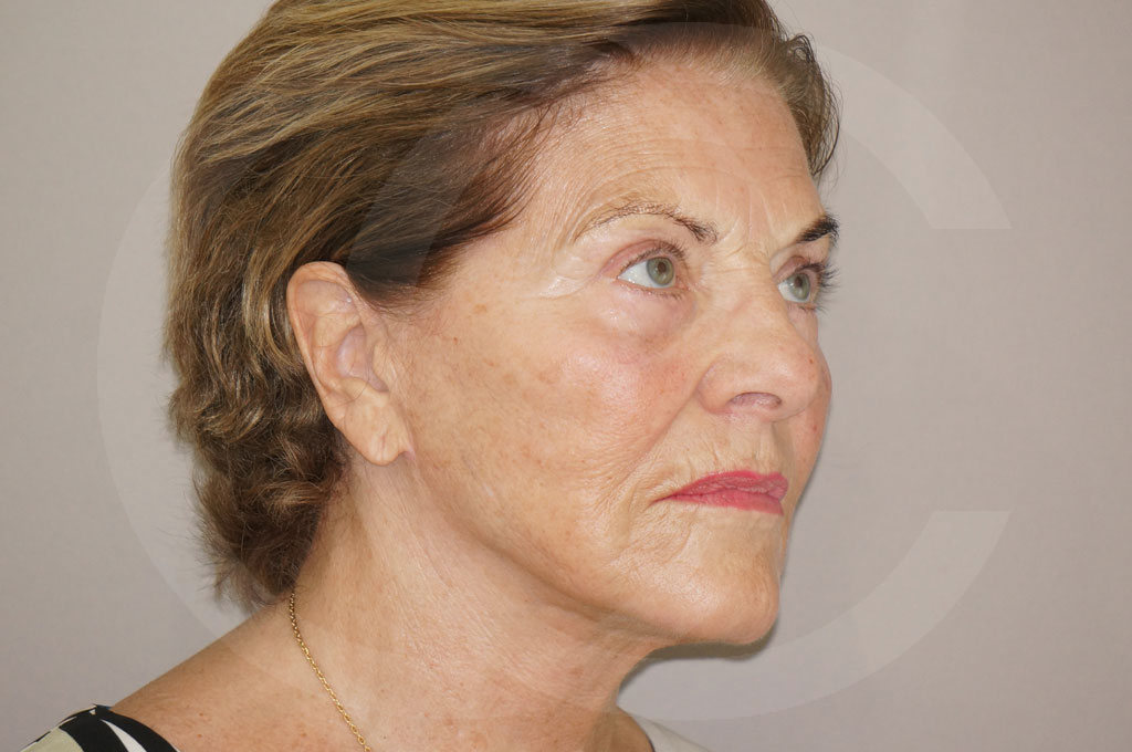Lipofilling facial Madrid foto PAVE-lifting después 04
