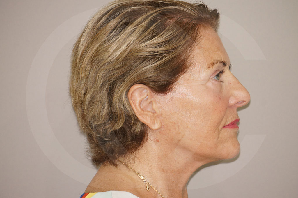 Lipofilling facial Madrid foto PAVE-lifting después 06