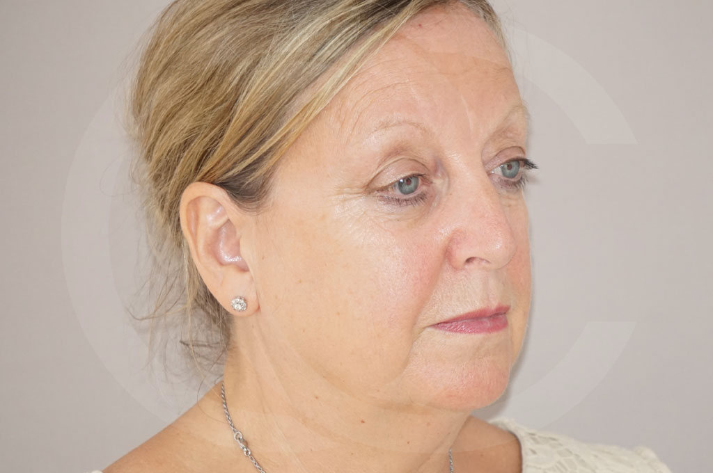 Lipofilling facial Madrid foto asistida por agua a presión antes 03
