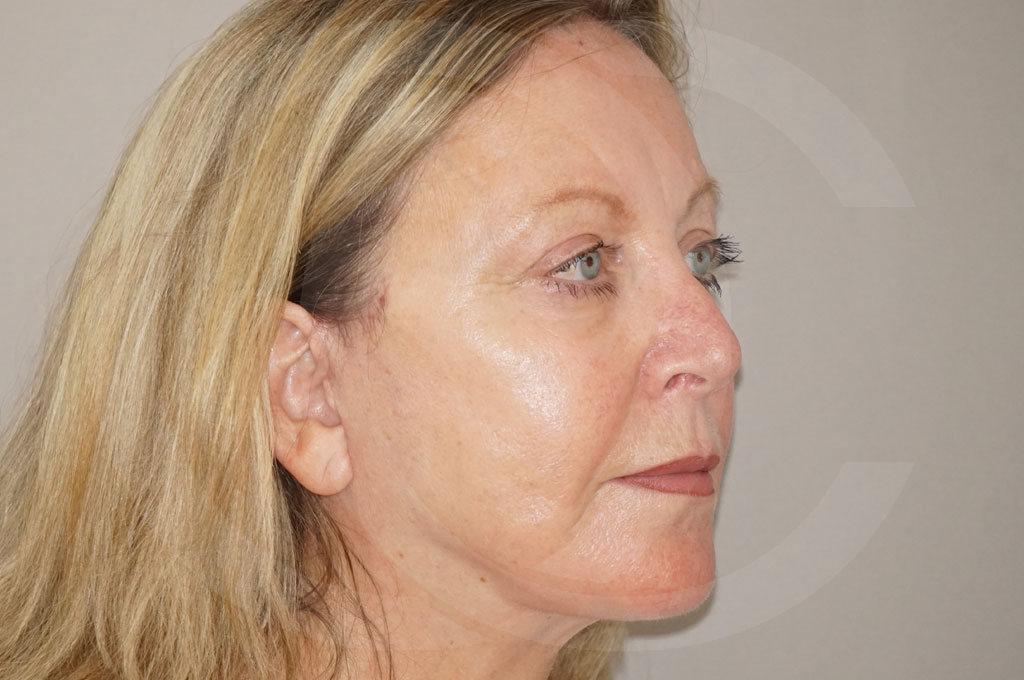 Lipofilling facial Madrid foto asistida por agua a presión después 04