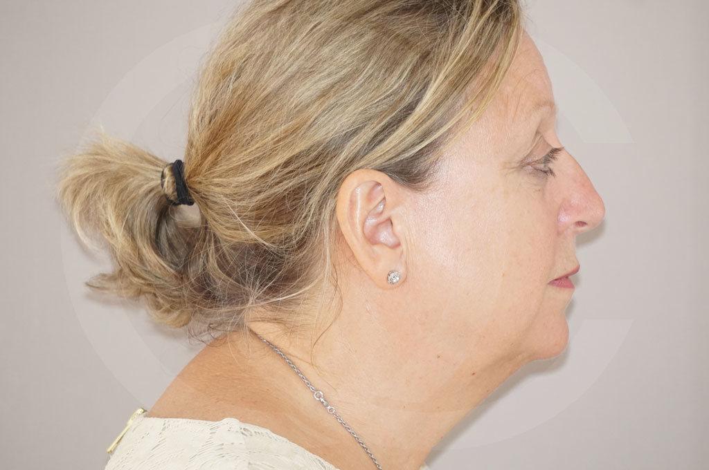 Lipofilling facial Madrid foto asistida por agua a presión antes 05