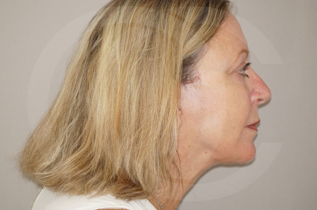 Lipofilling facial Madrid foto asistida por agua a presión después 06