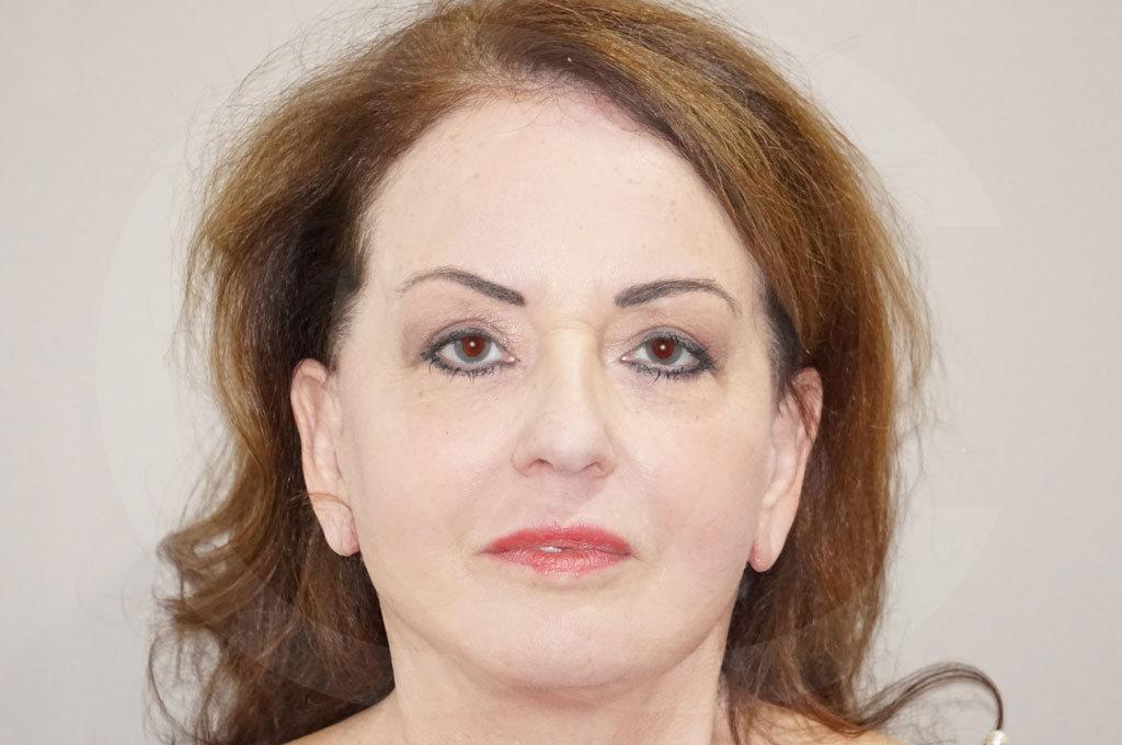 Lipofilling facial Madrid foto  después 02