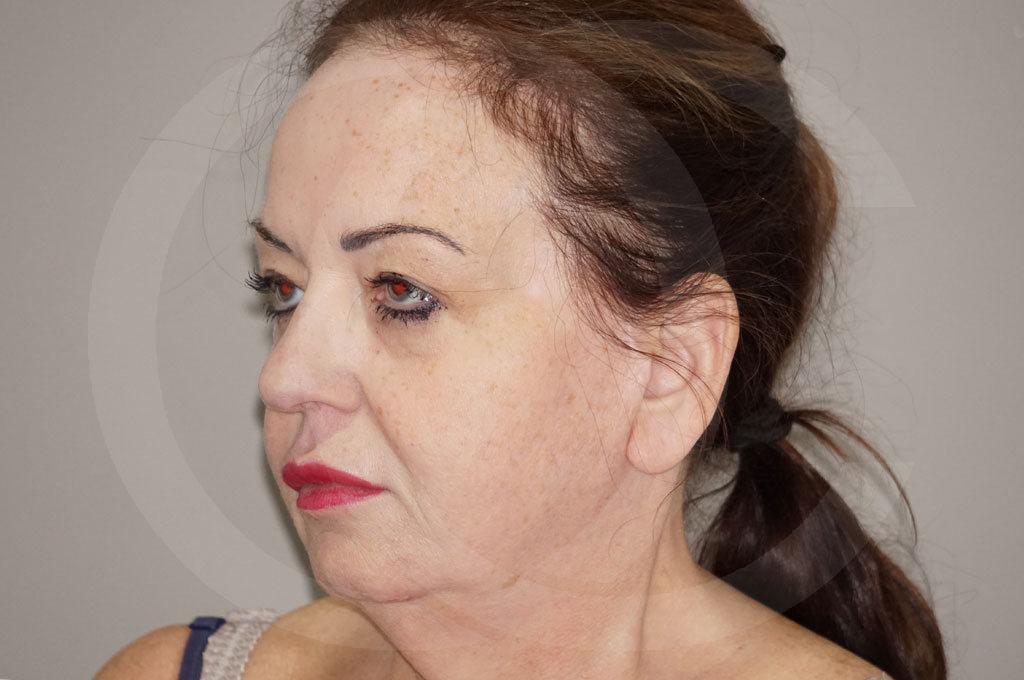 Lipofilling facial Madrid foto Relleno facial rejuvenecimiento antes 03