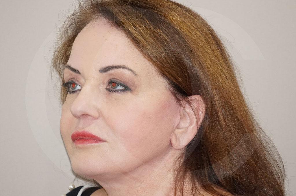 Lipofilling facial Madrid foto Relleno facial rejuvenecimiento después 04