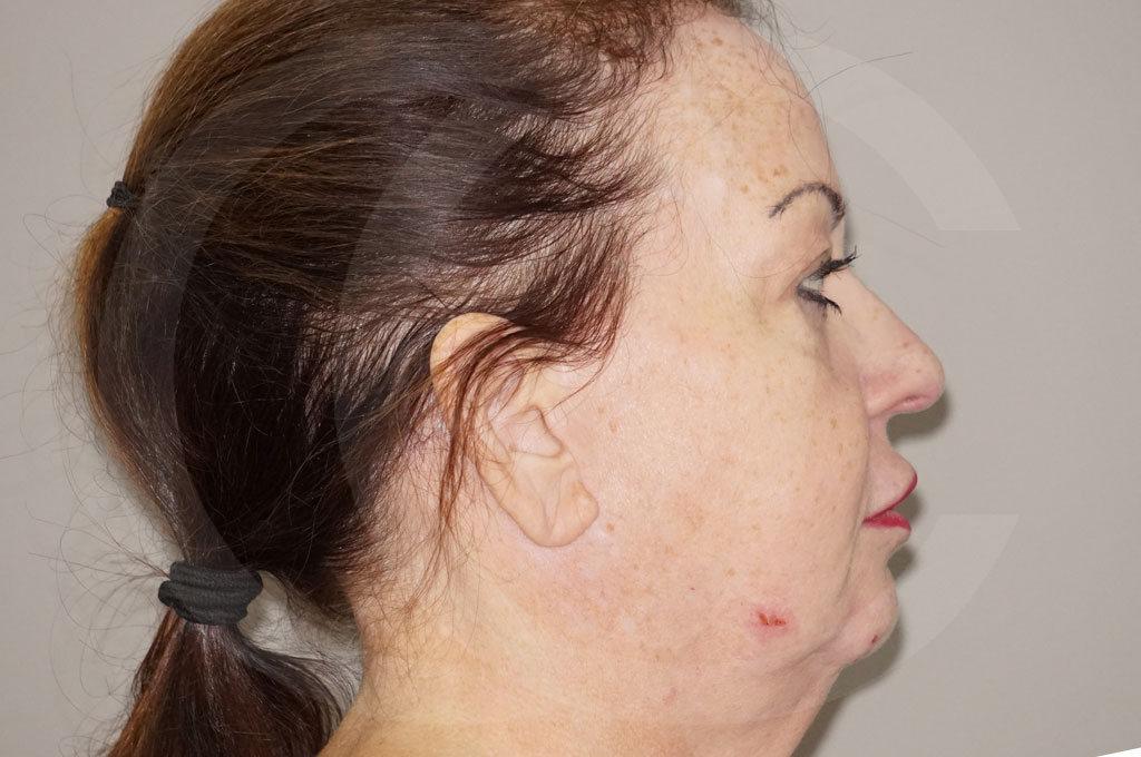 Lipofilling facial Madrid foto Relleno facial rejuvenecimiento antes 05