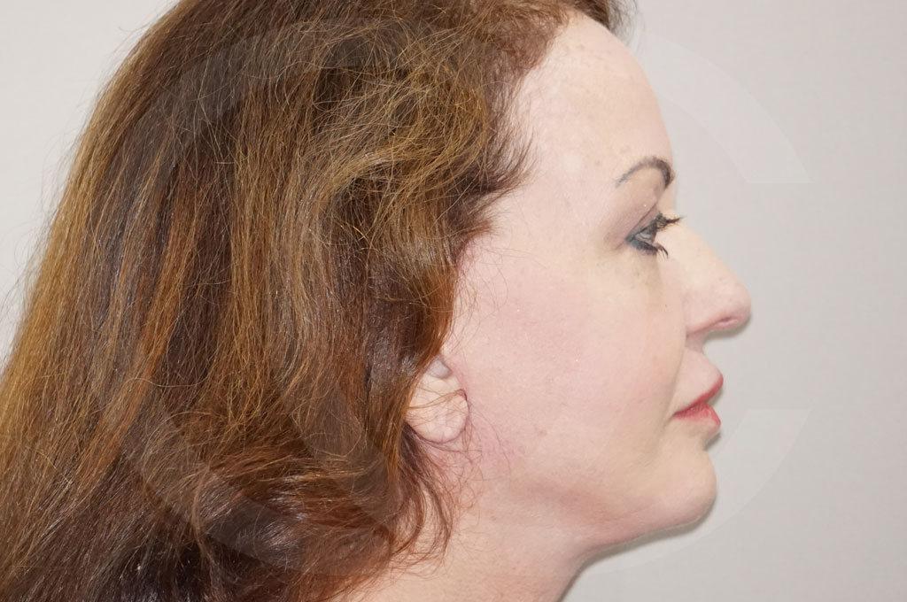 Lipofilling facial Madrid foto Relleno facial rejuvenecimiento después 06