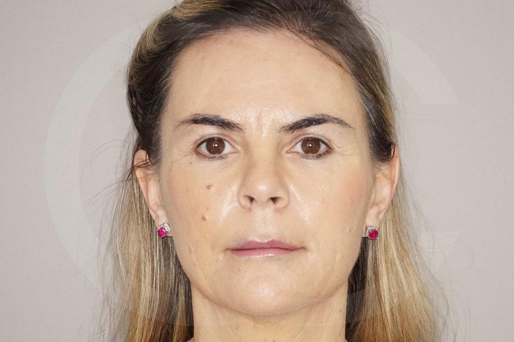 Lipofilling facial Madrid foto transferencia de grasa después 02