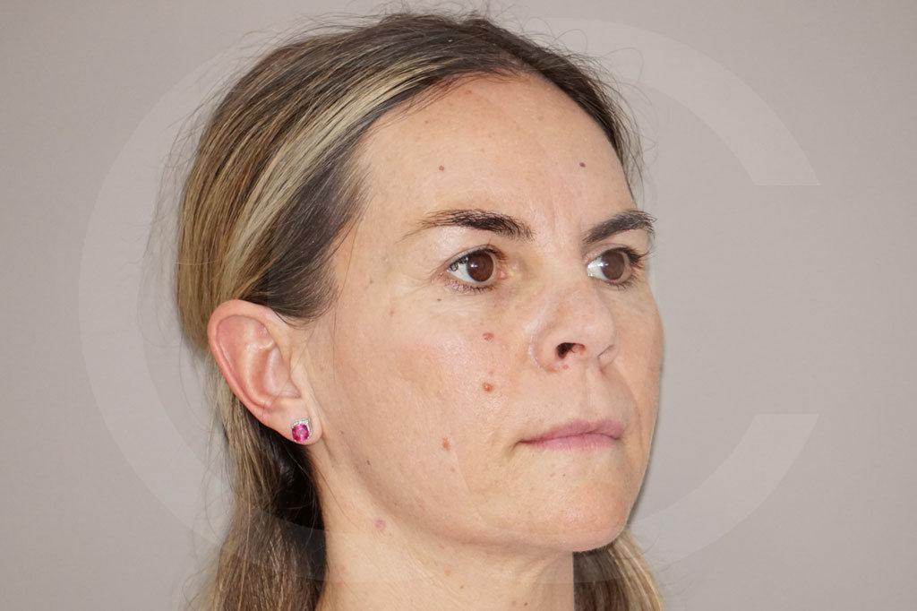 Lipofilling facial Madrid foto transferencia de grasa antes 03