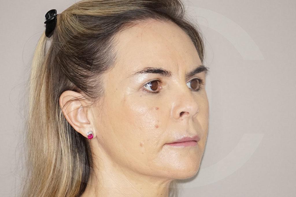 Lipofilling facial Madrid foto transferencia de grasa después 04