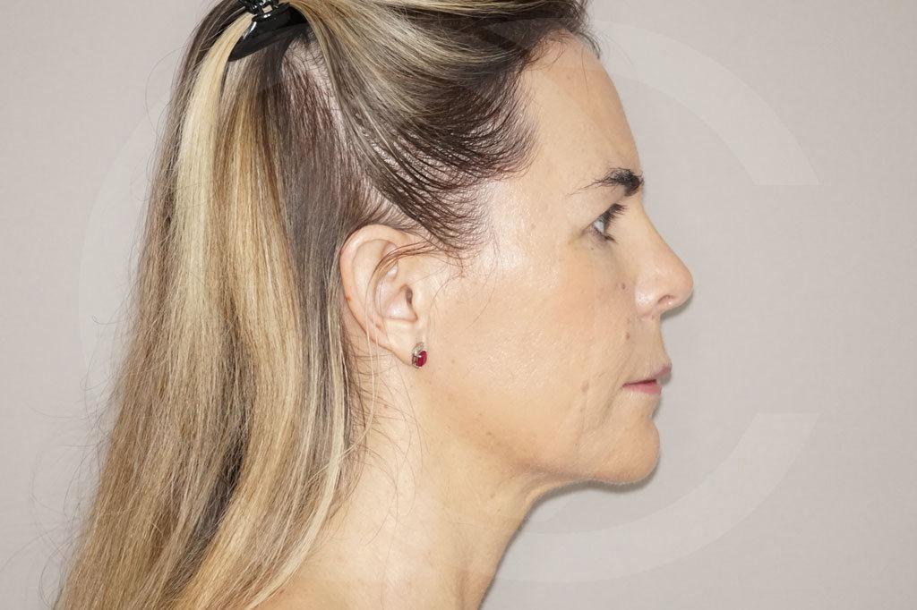 Lipofilling facial Madrid foto  después 06