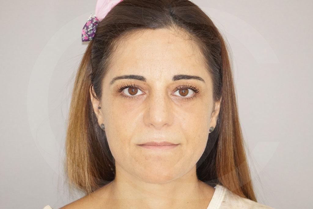 Lipofilling facial Madrid foto Lipotransferencia después 02