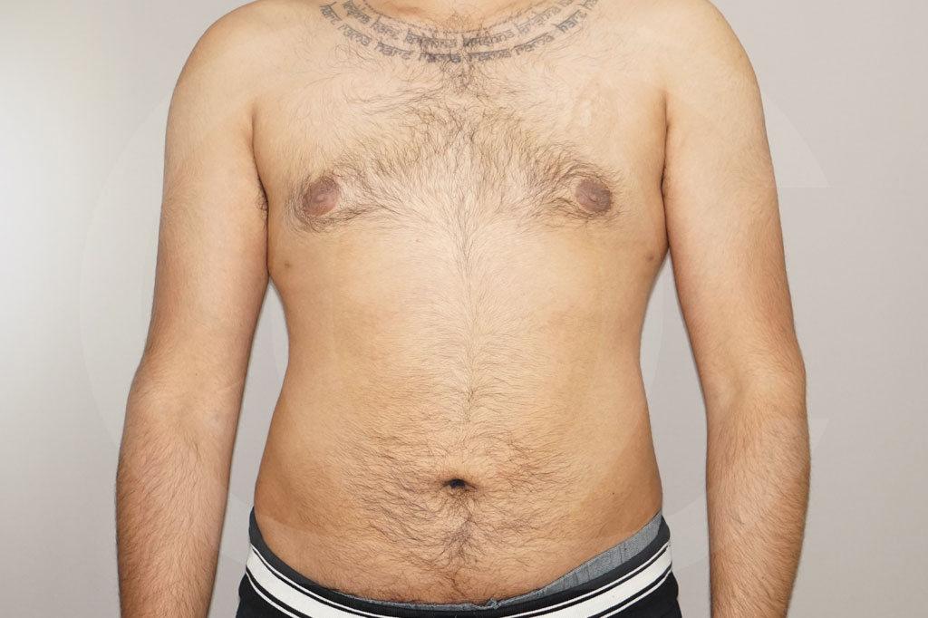 Liposuccion Madrid foto liposucción en el hombre después 02