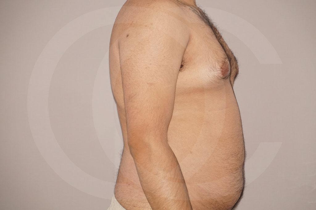 Liposuccion Madrid foto liposucción en el hombre antes 03