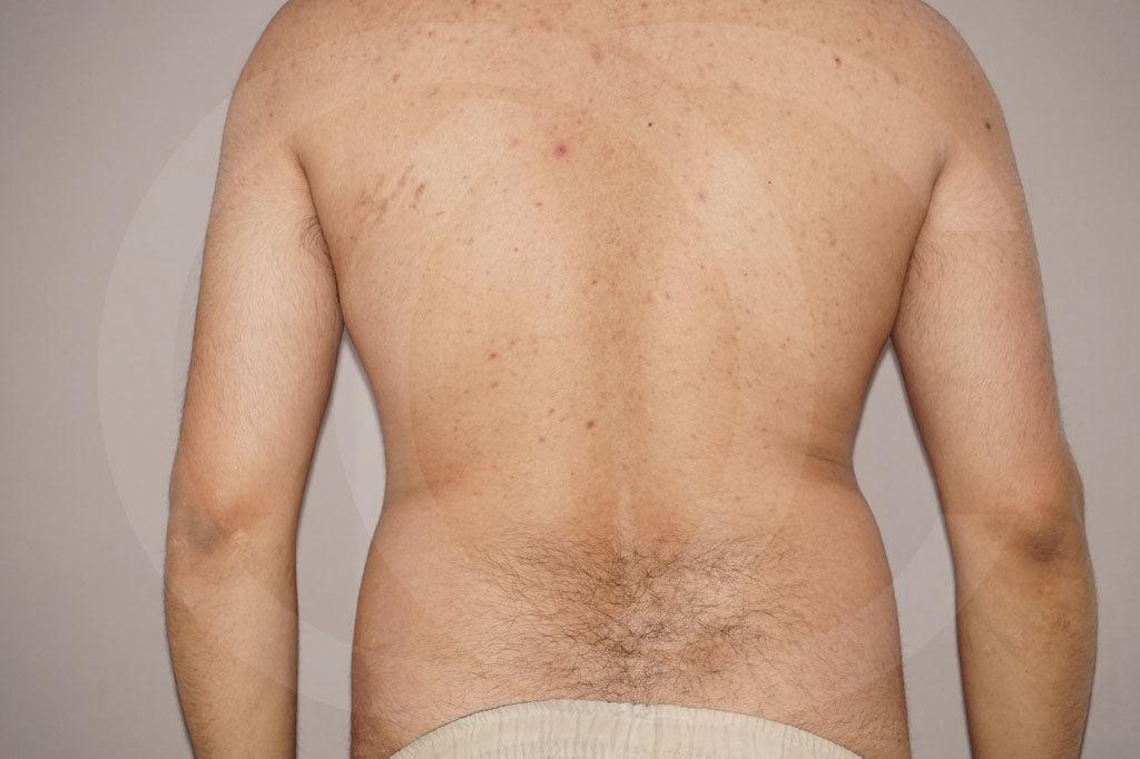 Liposuccion Madrid foto liposucción en el hombre antes 05
