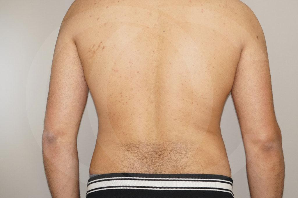 Liposuccion Madrid foto liposucción en el hombre después 06