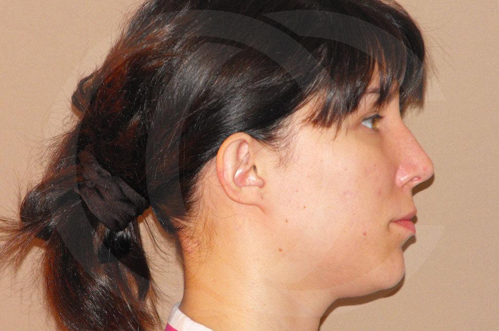 Otoplastia Madrid foto cirugia plastica de orejas antes 03