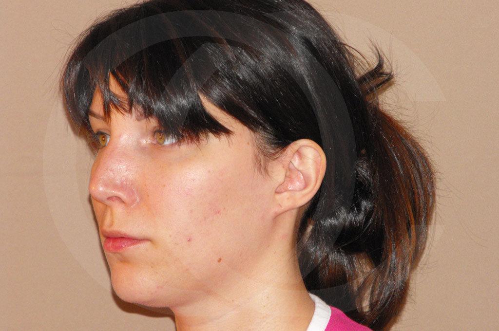 Otoplastia Madrid foto cirugia plastica de orejas antes 05