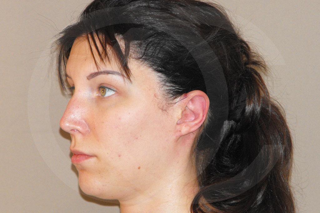 Otoplastia Madrid foto cirugia plastica de orejas después 06