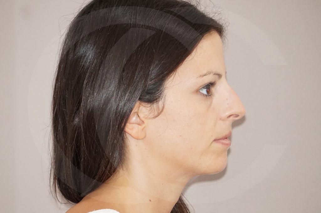 Rinoplastia Madrid foto Operación de nariz femenina antes 03