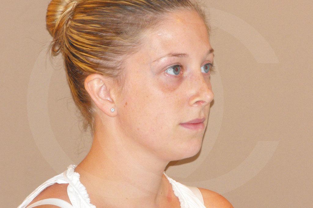 Rinoplastia Madrid foto Cirugía plástica de la nariz antes 03