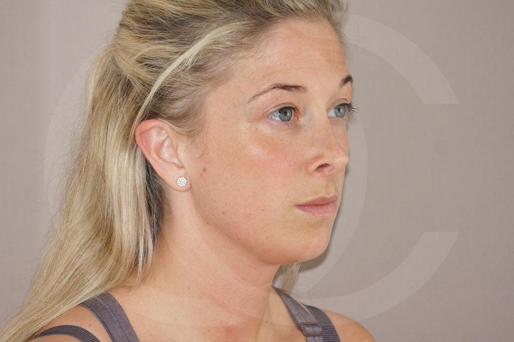 Rinoplastia Madrid foto Cirugía plástica de la nariz después 04
