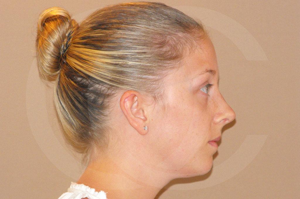 Rinoplastia Madrid foto Cirugía plástica de la nariz antes 05