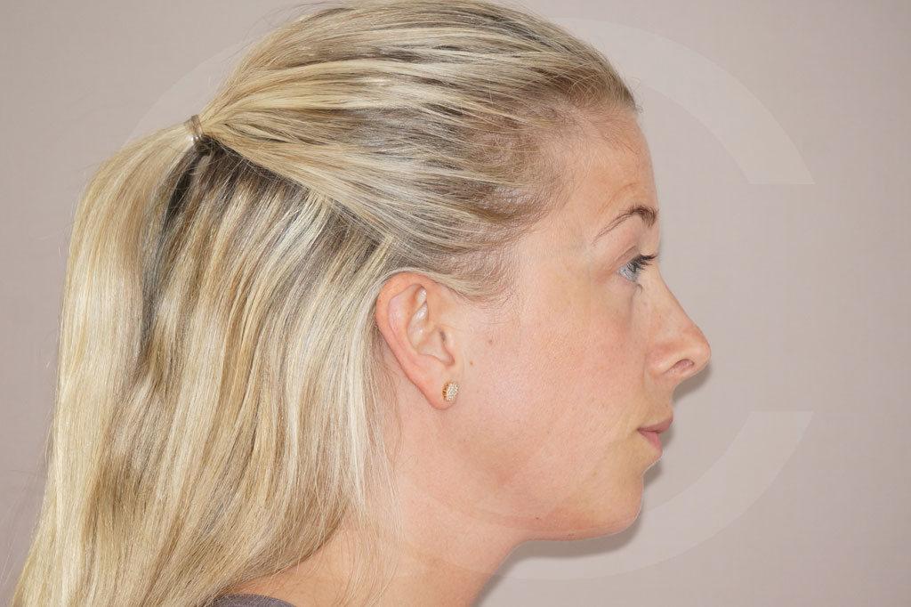 Rinoplastia Madrid foto Cirugía plástica de la nariz después 06