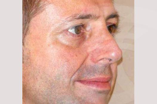 Rinoplastia Madrid foto Rinoplastia masculina después 02