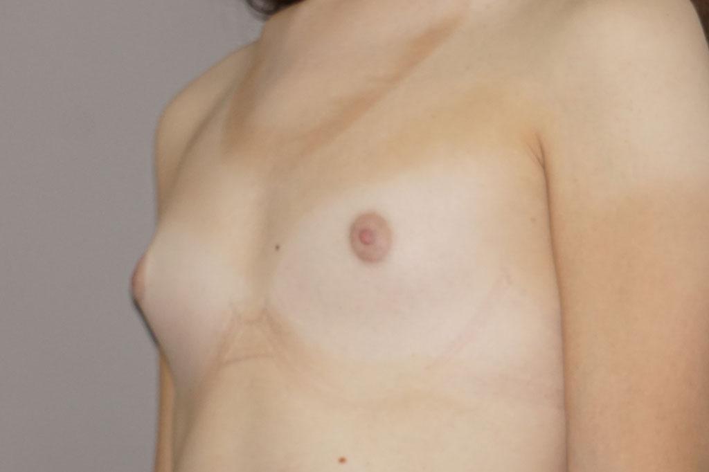 Mujeres transexuales antes y el después. Aumento de pecho postoperatorio 03