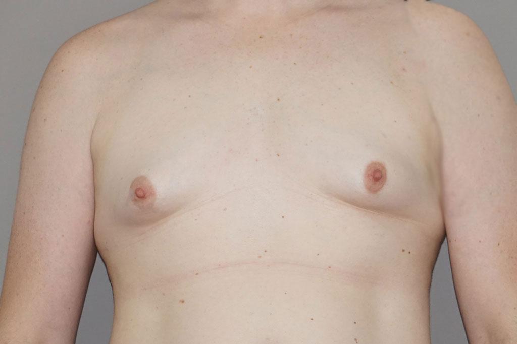 Aumento de mamas mujer trans 48 años 01