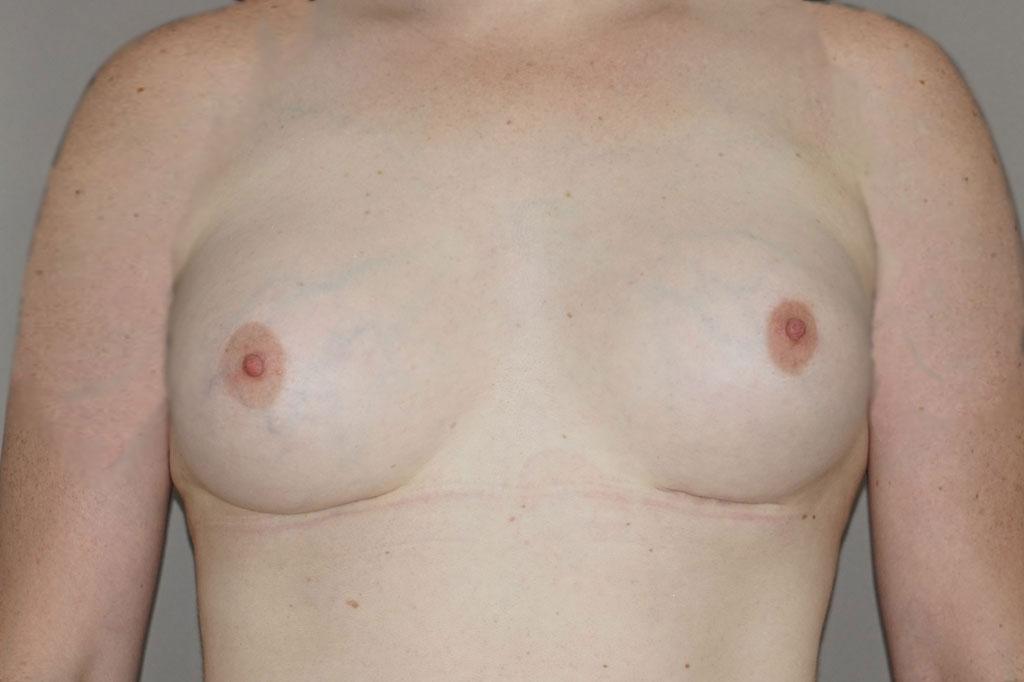 Aumento de mamas mujer trans 48 años forntal