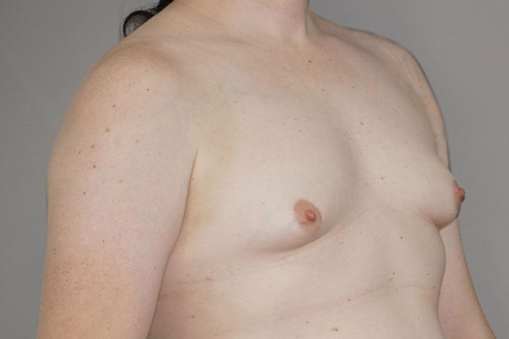 Aumento de mamas mujer trans 48 años 03