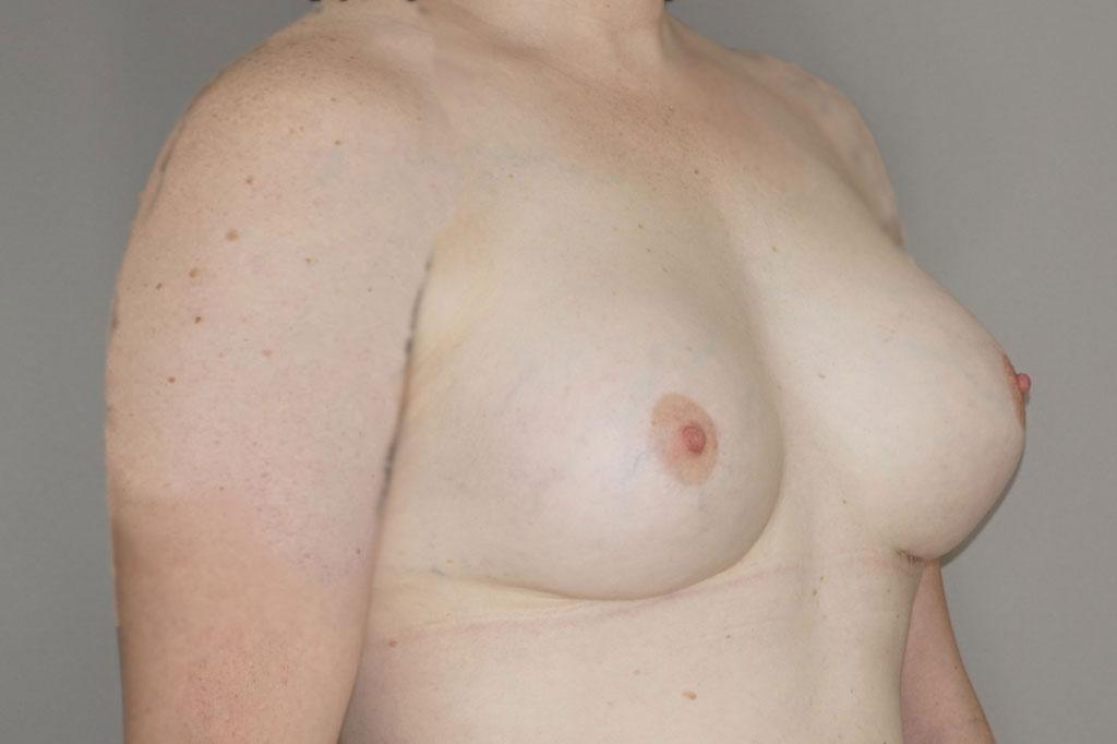 Aumento de mamas mujer trans 48 años 04