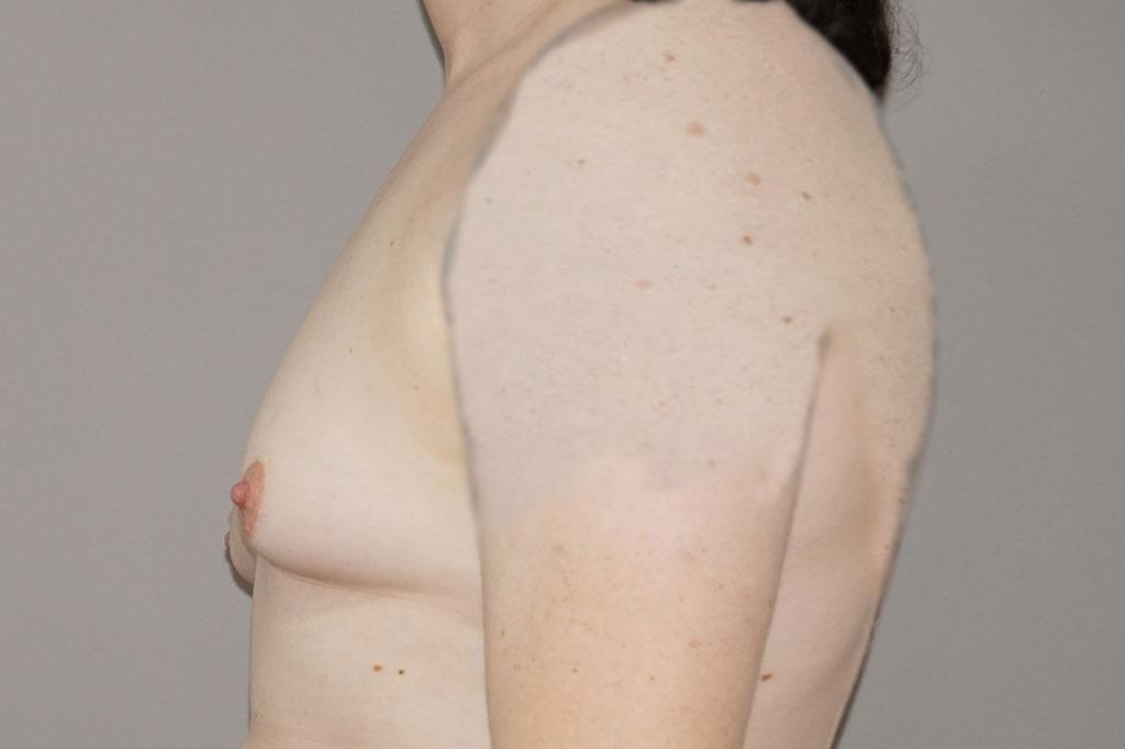 Aumento de mamas mujer trans 48 años 05