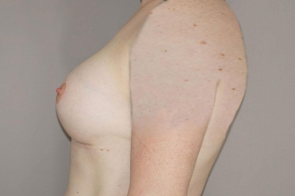 Aumento de mamas mujer trans 48 años 06