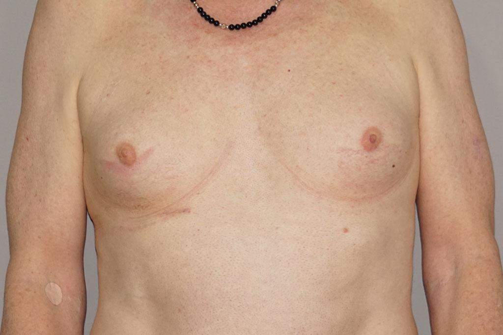 Antes y el después aumento de pecho transgénero 01