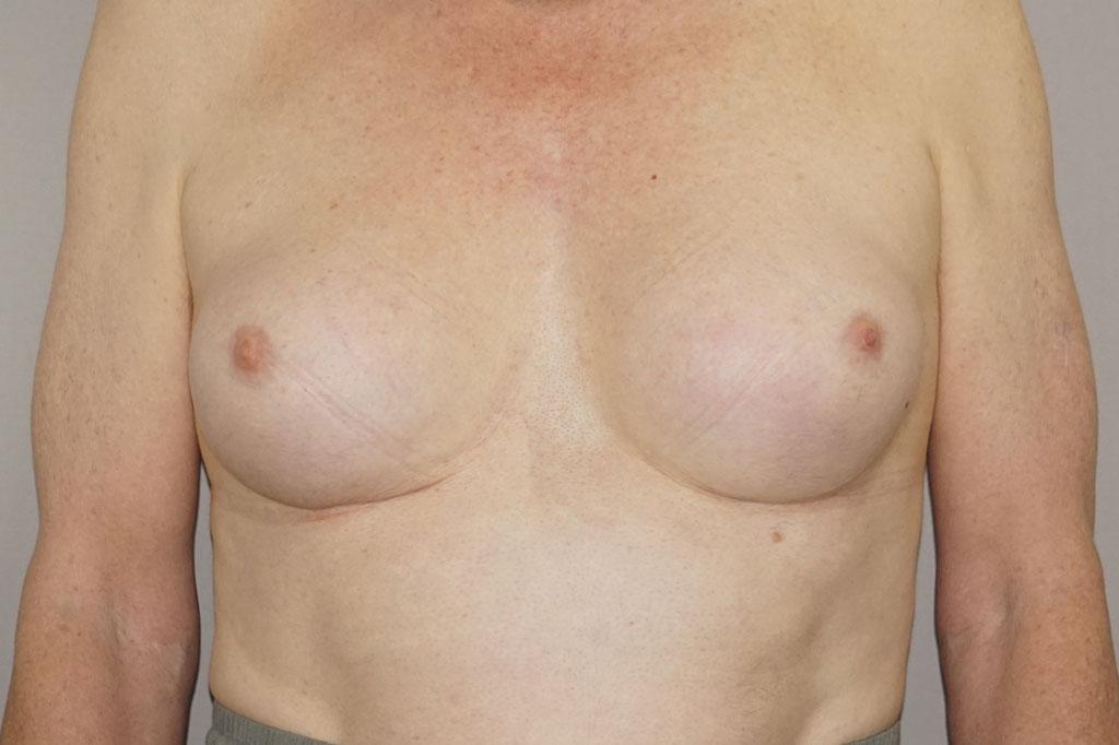 Antes y el después aumento de pecho transgénero forntal