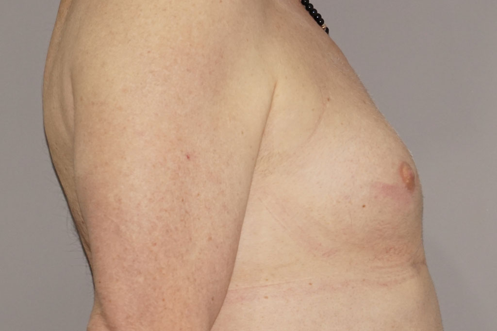 Antes y el después aumento de pecho transgénero 03