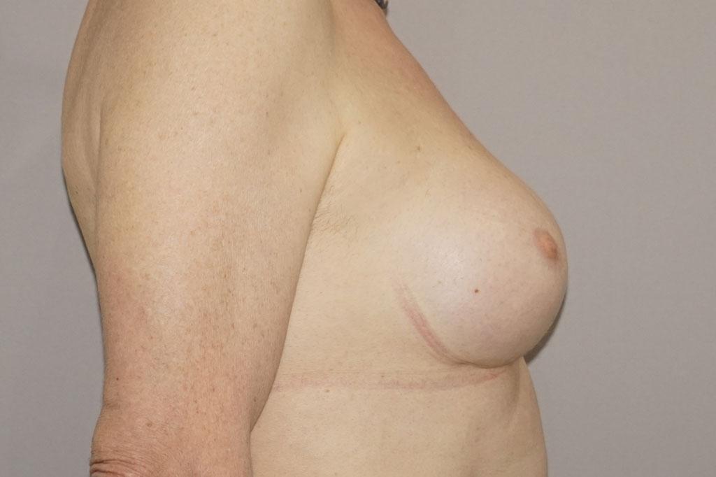 Antes y el después aumento de pecho transgénero 04