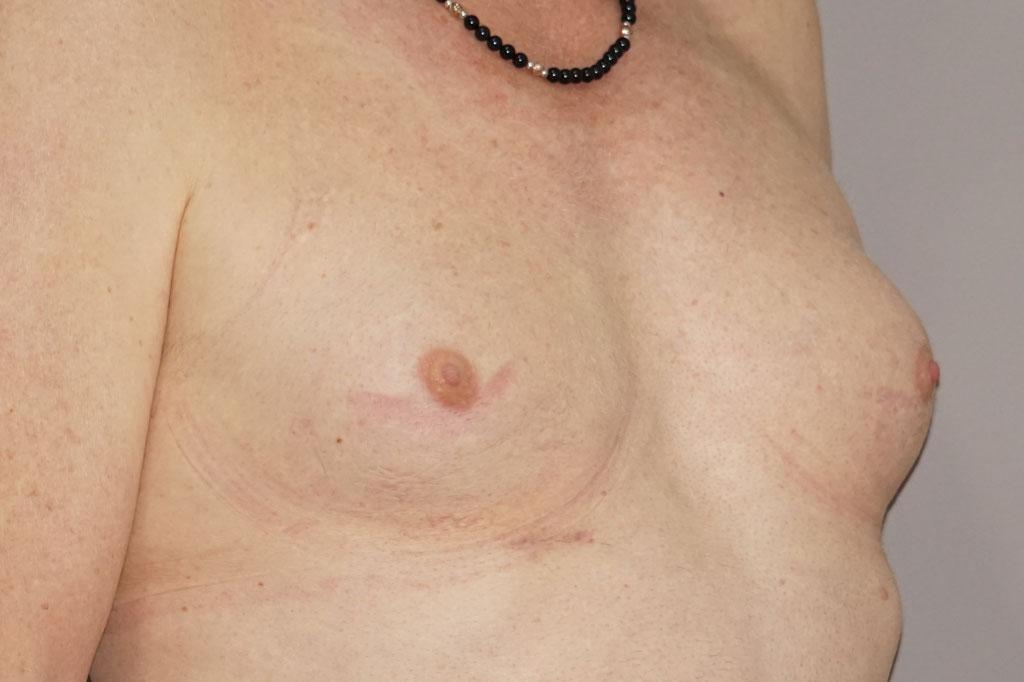 Antes y el después aumento de pecho transgénero 05