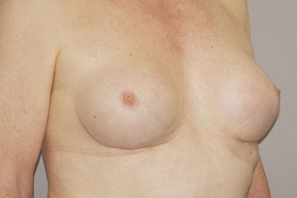 Antes y el después aumento de pecho transgénero 06