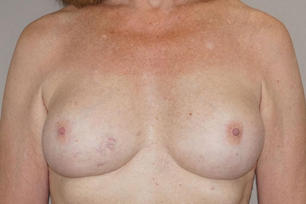 Mujeres transexuales antes y el después. Aumento de pecho forntal