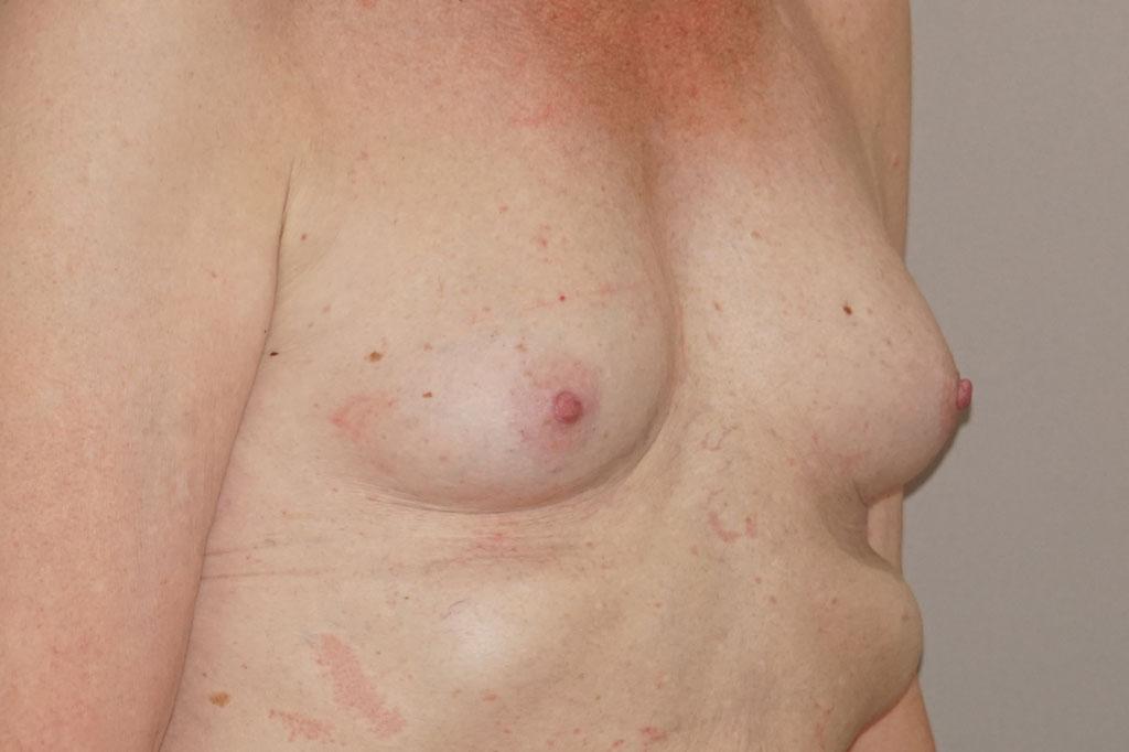 Mujeres transexuales antes y el después. Aumento de pecho 03