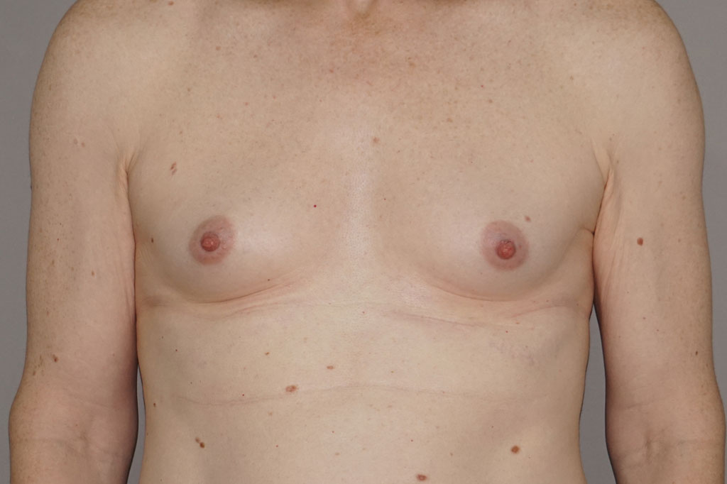 Aumento de pecho en una paciente transgénero de 26 años 01