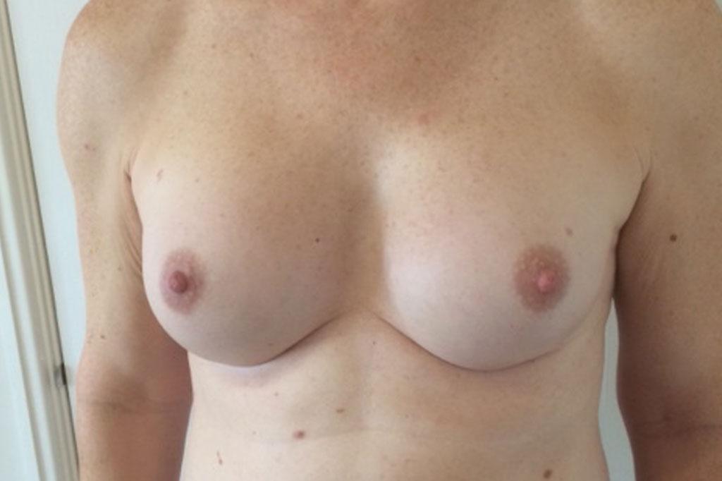 Aumento de pecho en una paciente transgénero de 26 años frontal